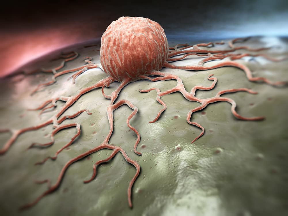 What Is Cancer? Read An Easy To Understand Explanation Of 'The Big C'