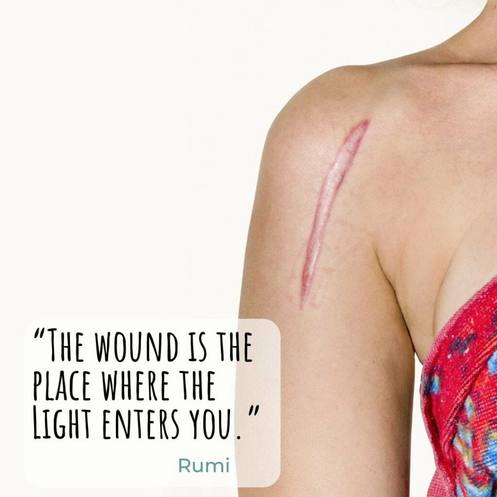 The Wound Is The Place That Light Enters You